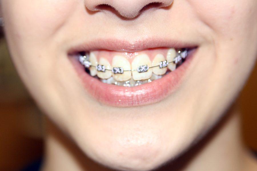 Sophomore Lauren Allen recently received braces.